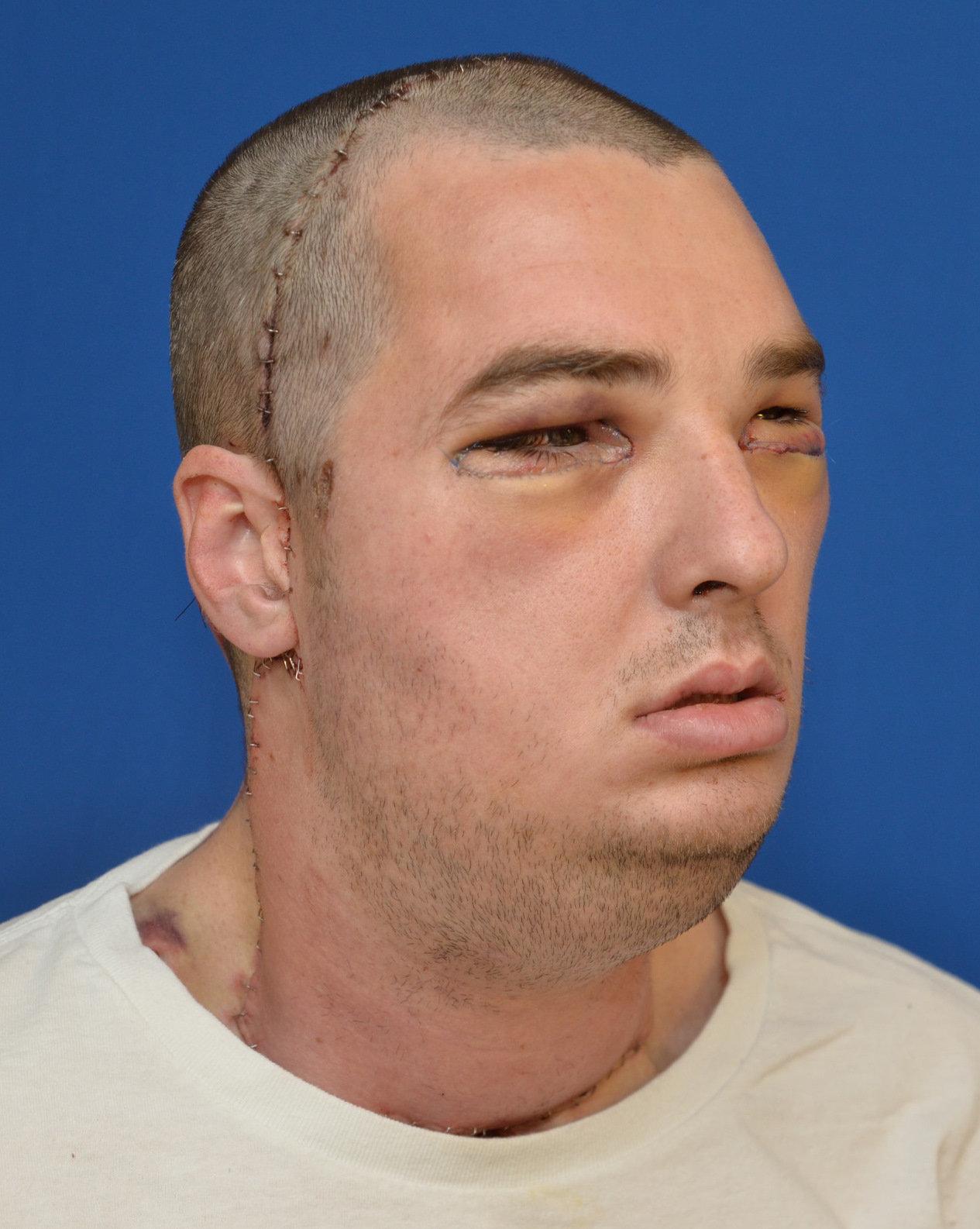 Complete facial transplant