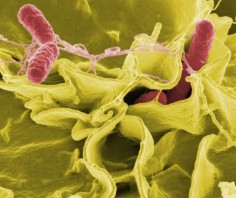 Salmonella © Rocky Mountain Laboratories, NIAID, NIH